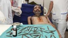 Ärzte holen 40 Messer aus dem Bauch eines Mannes