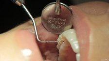 Anklage: Zahnärztin zog 22 gesunde Zähne